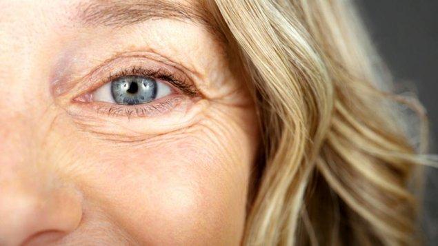 Göz Altı Şişlikleri Neden Olur, Nasıl Geçer?